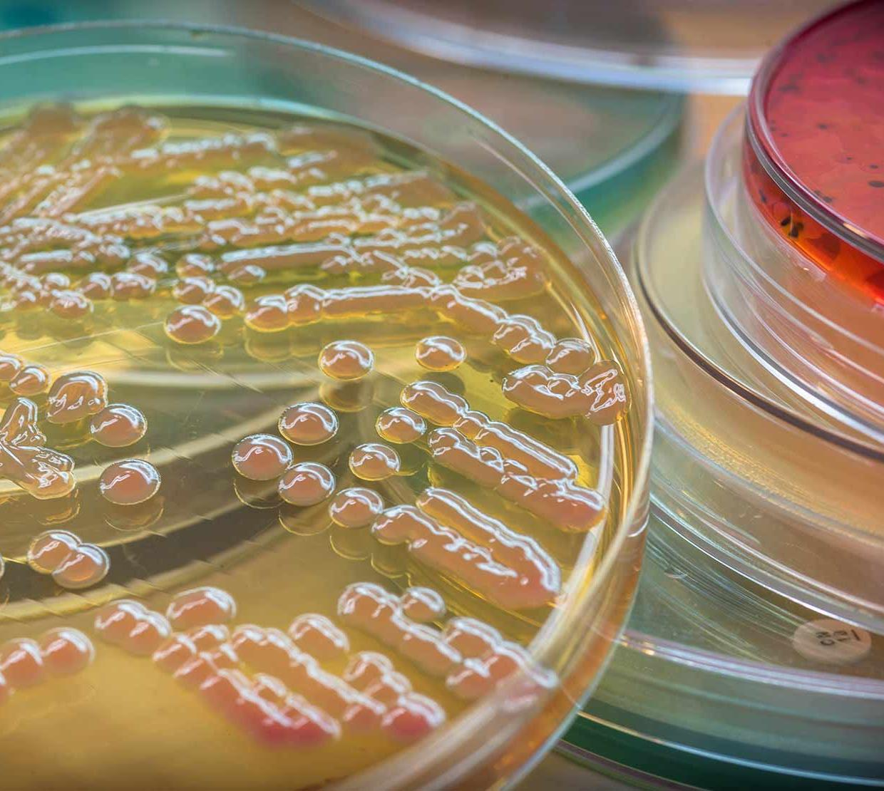 bacteria in pile of Petri dishes