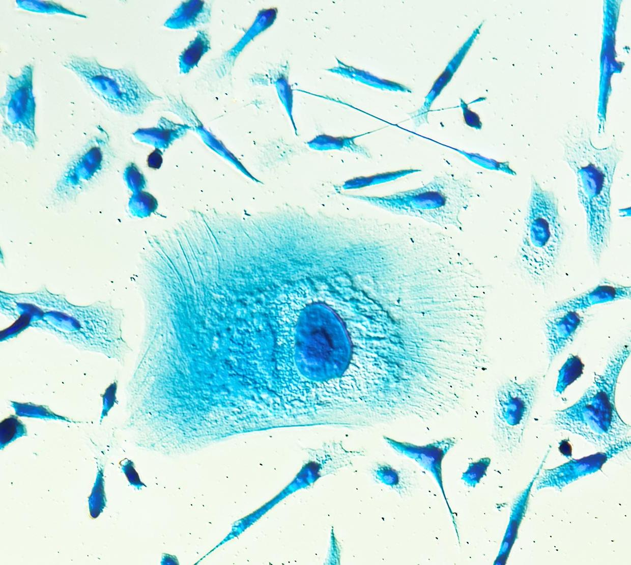 microscopic image of blue PC-3 cancer cells