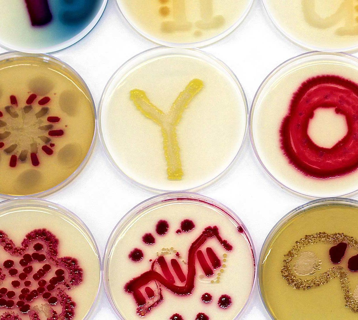 Petri dishes with micro-biome artwork