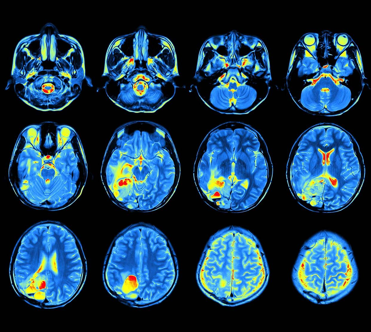 scan of blue and green human brain patterns above black backdrop